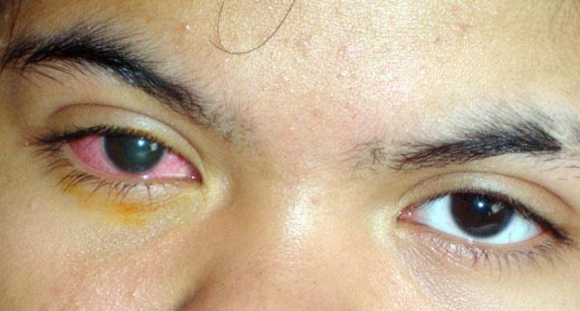 الالتهاب كما هو واضح على عين الطفلة