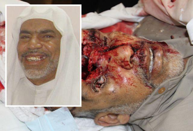 عيسى عبدالحسن (61 عاماً) من كرزكان وقد تهشم النصف الأعلى من رأسه بعد إصابة مباشرة