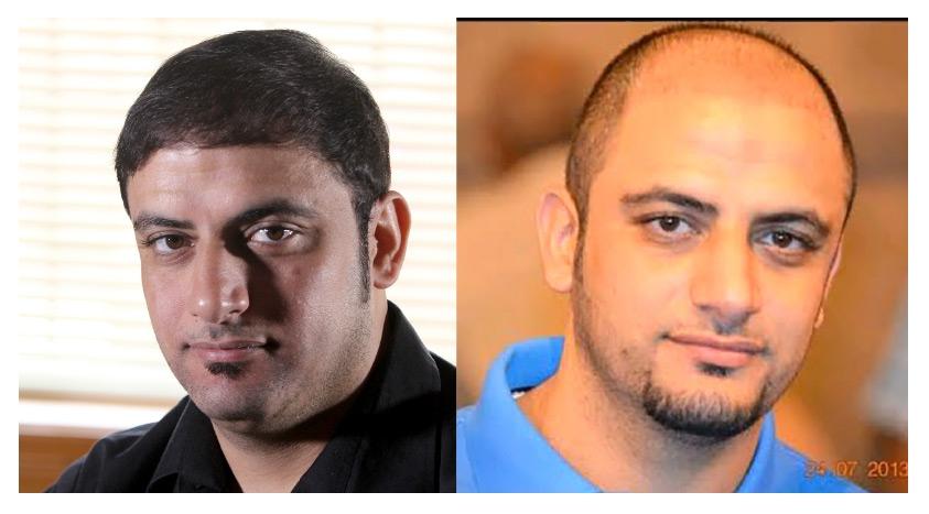 حسين مشيمع قبل العملية - حسين مشيمع بعد العملية