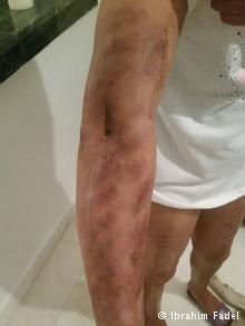 آثار عملية شفط دهون فاشلة على ذراع فتاة