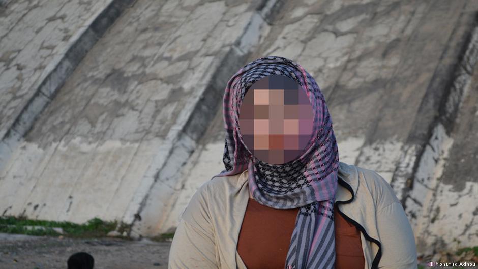 هاجر ضحية عمليات التجميل الفاشلة في المغرب (  جميع الصور نشرتها دويتشه فيله)