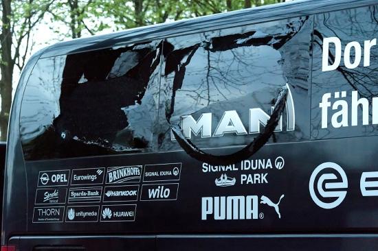 حافلة دورتموند والإصابات التي حدثت فيها نتيجة الانفجار   - epa